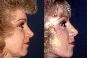 Rejuvenecimiento Facial (Facelift)